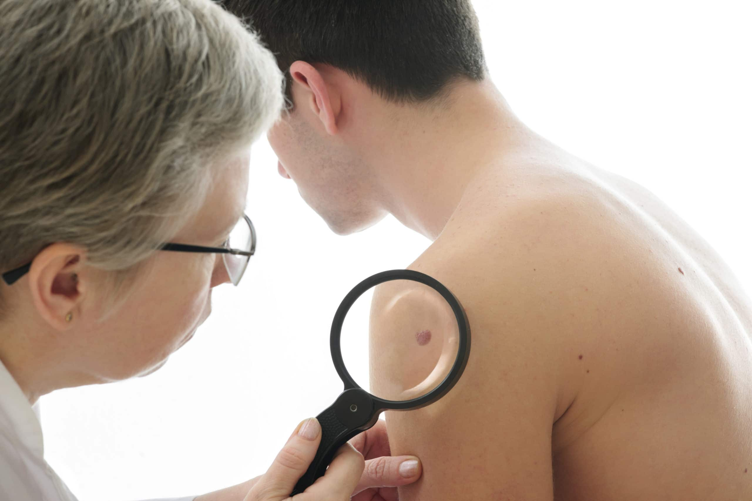 Picture of dermatologist examining a mole