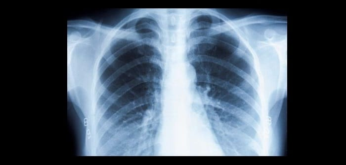 Picture of lung xray