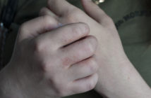 Girl scratching her hands that have a rash